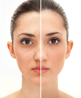 Find the right combination – for your skin
